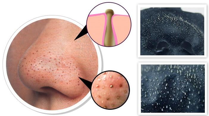 Уход за проблемной кожи лица до 25 лет